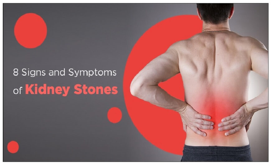 8 signs and symptoms that you may have Kidney stones