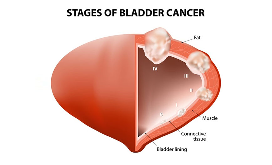 Bladder Cancer – An Overview About The Ailment!