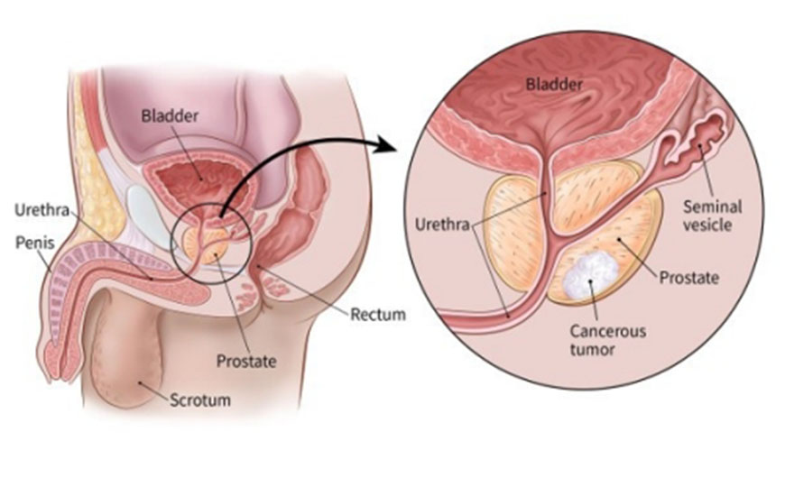 BPH – Enlarged Prostate Gland