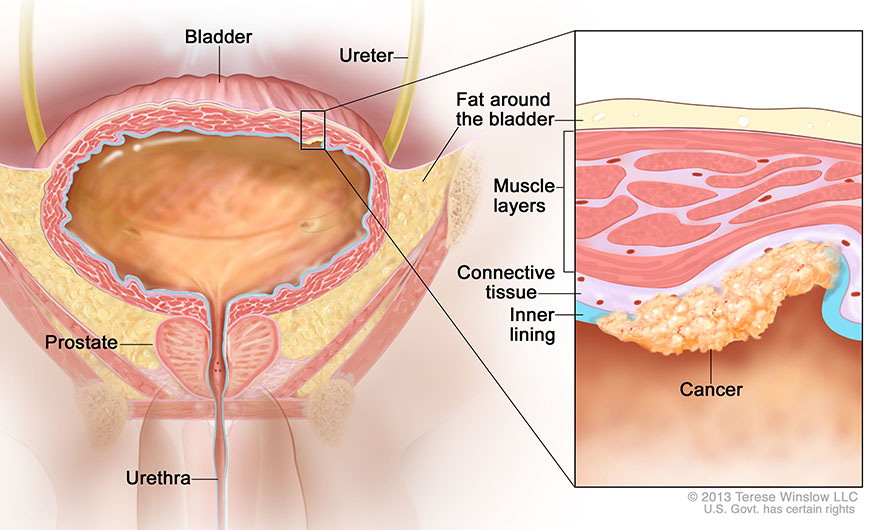 Bladder Cancer – How To Identify It?